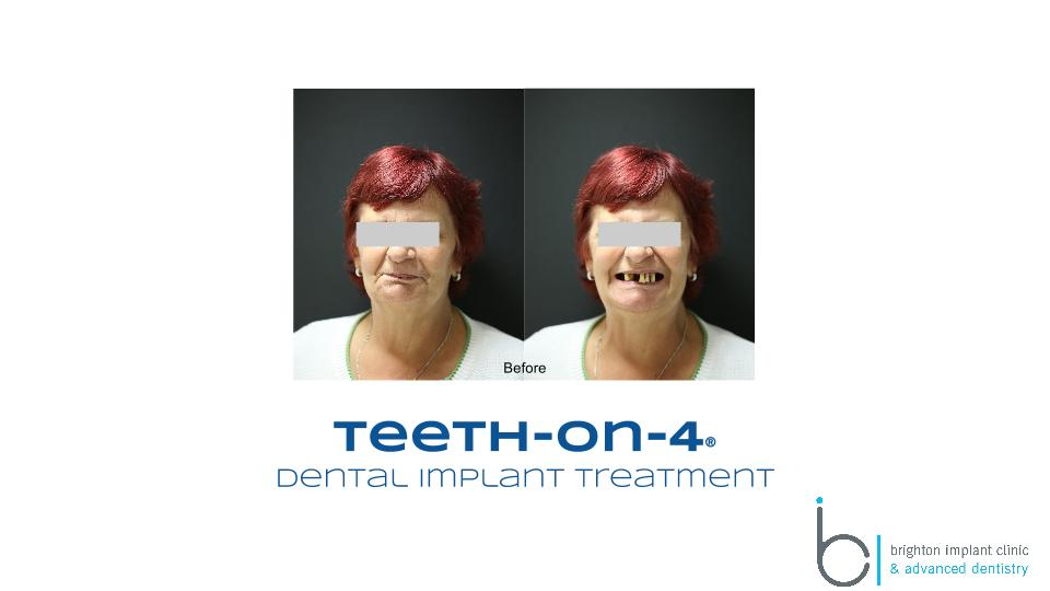 Before teeth on 4 dental implant treatment