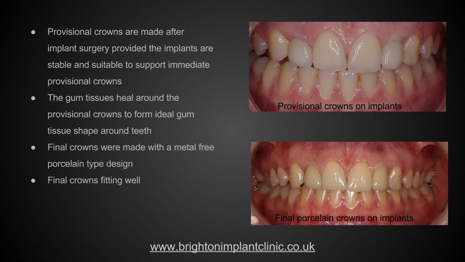 Provisional and final implant crowns