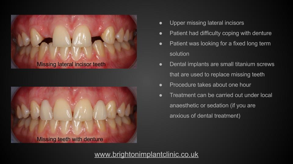 Before implant treatment