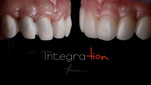 dental photography showing zirconia framework before porcelain buildup