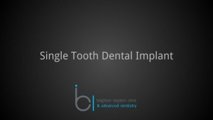 Single tooth dental implant 1 brighton implant clinic