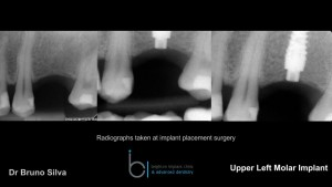 Single tooth dental implant 5 brighton implant clinic