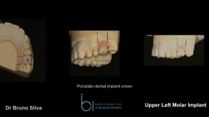 Single tooth dental implant 7 brighton implant clinic