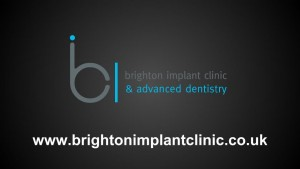 Single tooth dental implant 13 brighton implant clinic