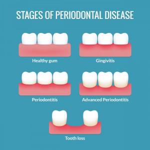 gum disease Chart