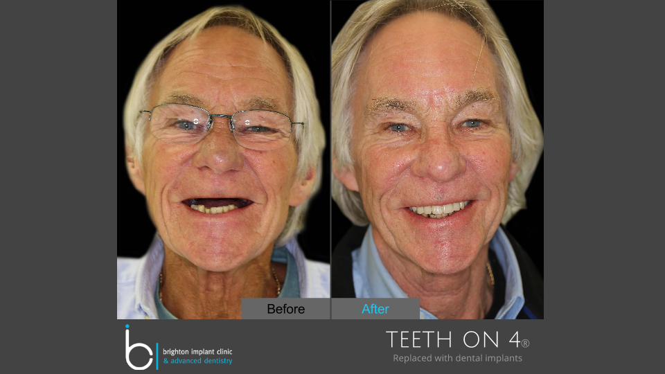 Before and afters Brighton Implant Clinic