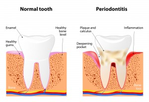 gum disease is a inflammatory diseases affecting the periodontium, the tissues that surround and support the teeth