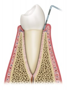 gum disease probing periodontal pocket