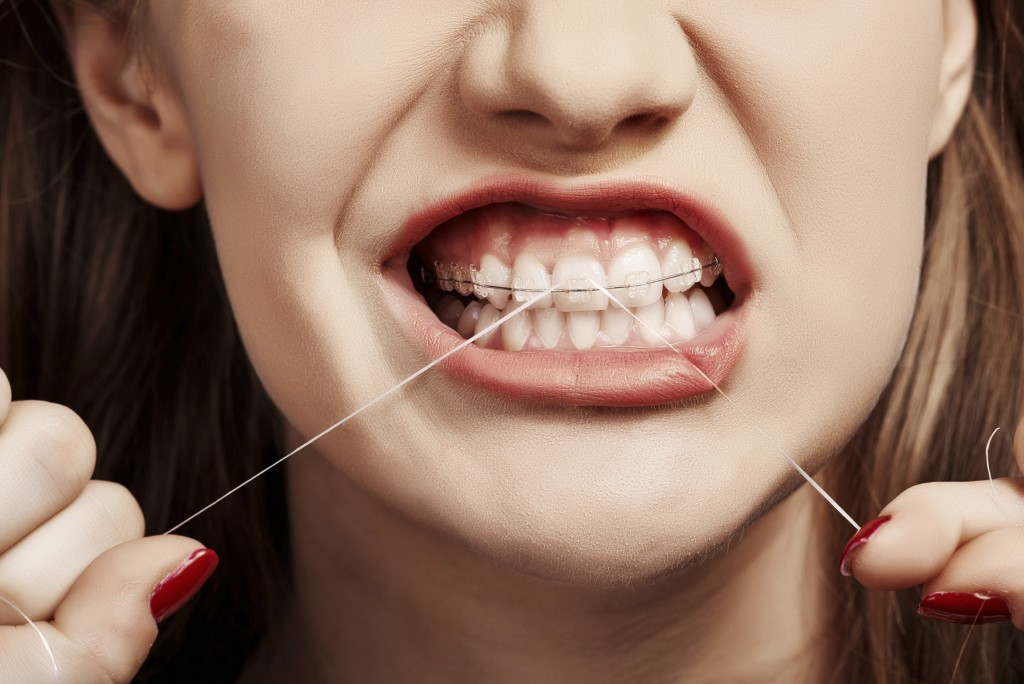 flossing with dental braces