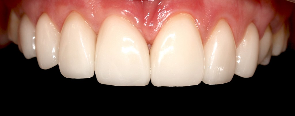 Black teeth after dental implant treatment