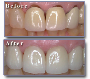 Replace Aging Crowns and Bridgwork with a Dental Implant