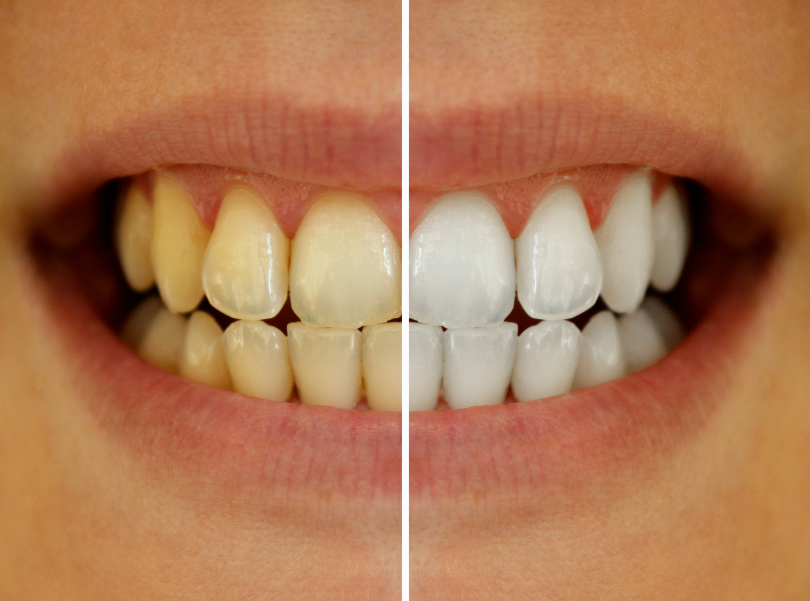 : Discoloration Types Implants Tooth Dental