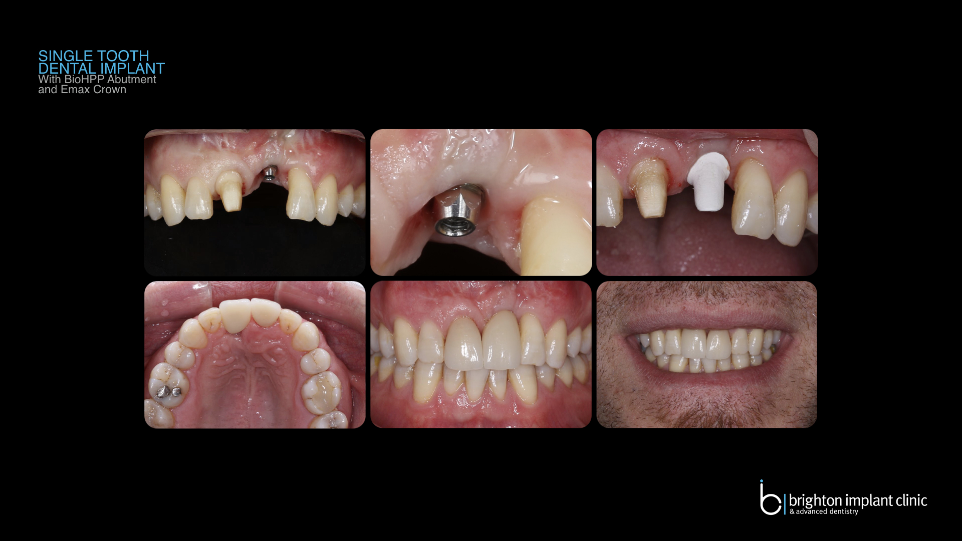replacement of single tooth with dental implant, complications of implants