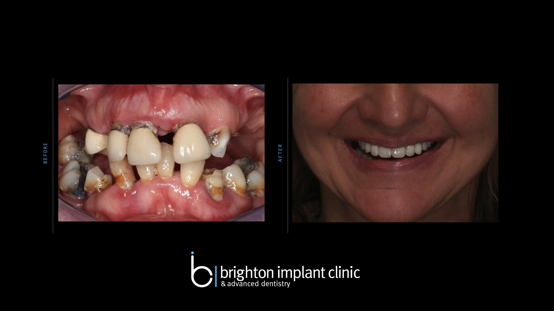 titanium implants before and after treatment