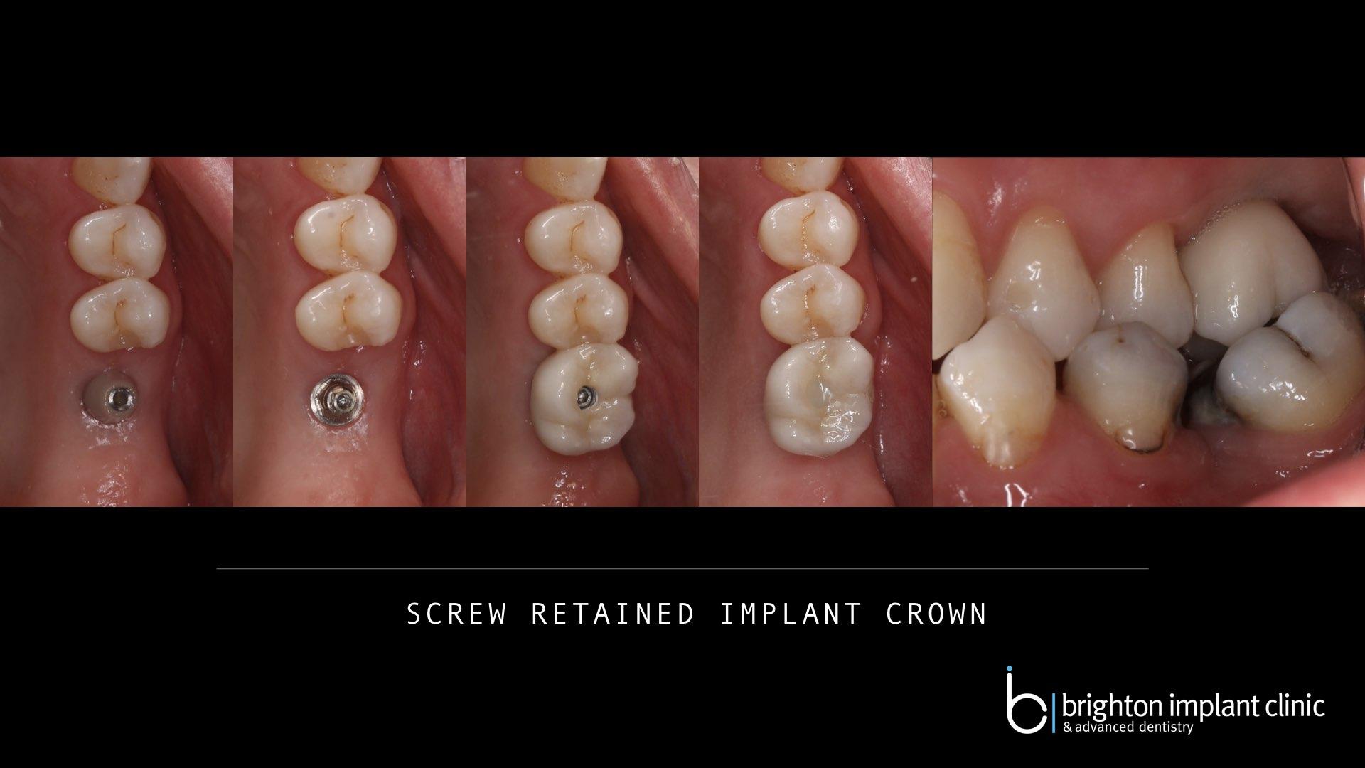 titanium implant, screw retained crown