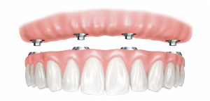 dentures-implants-fixed-smaller-e1461662143196-300x145