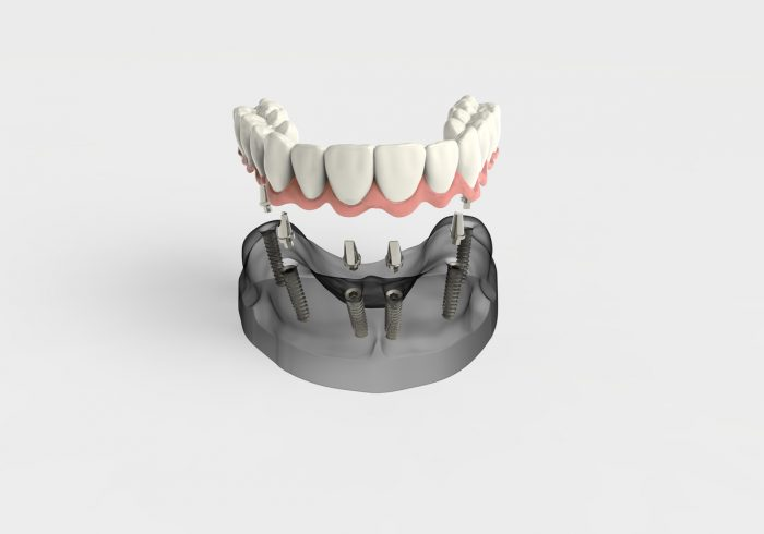 3D rendering implant, dental implants