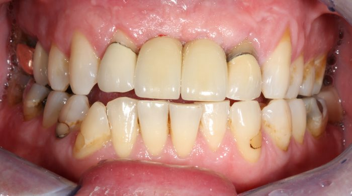 dark dental crowns