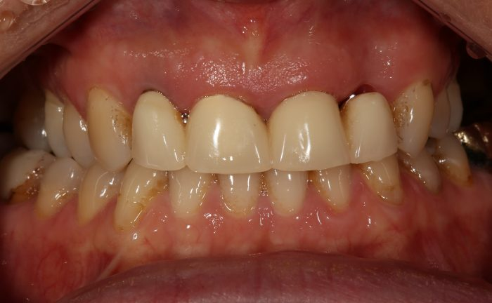 dark lines around dental crowns
