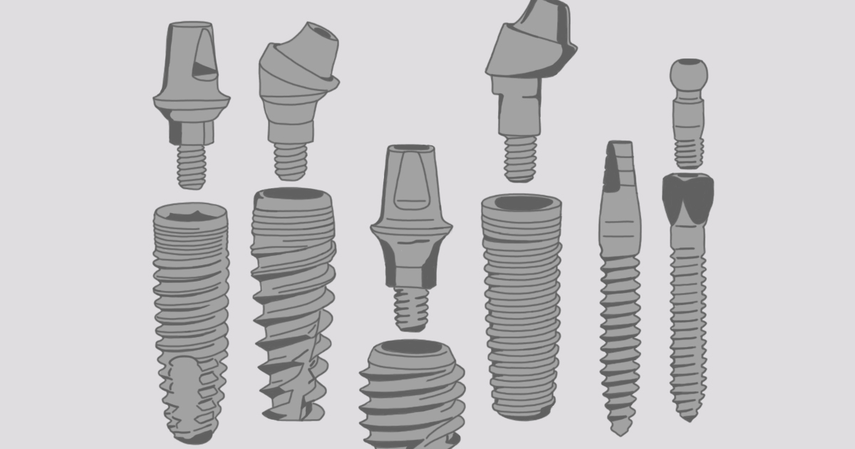 What Makes Each Dental Implant System Unique?