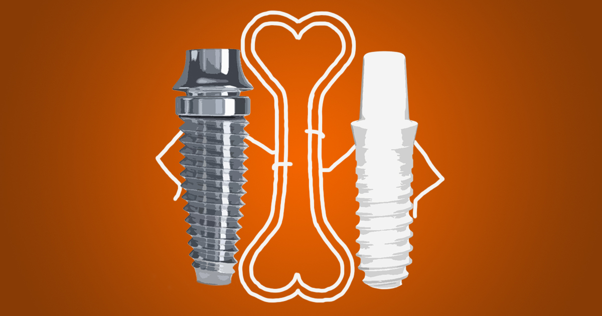 dental implant materials titanium vs zirconia