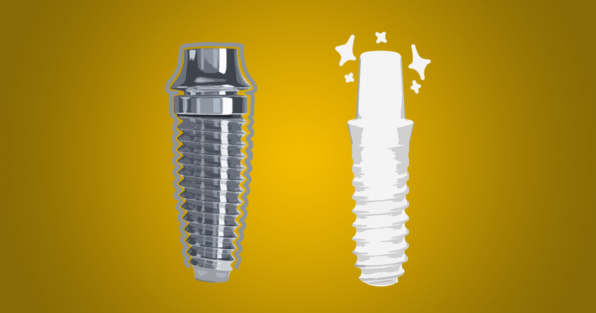 titanium implants vs zirconia implants appearance