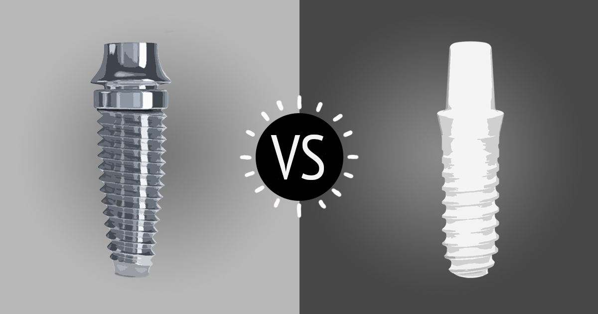 dental implant materials titanium implants vs zirconia implants