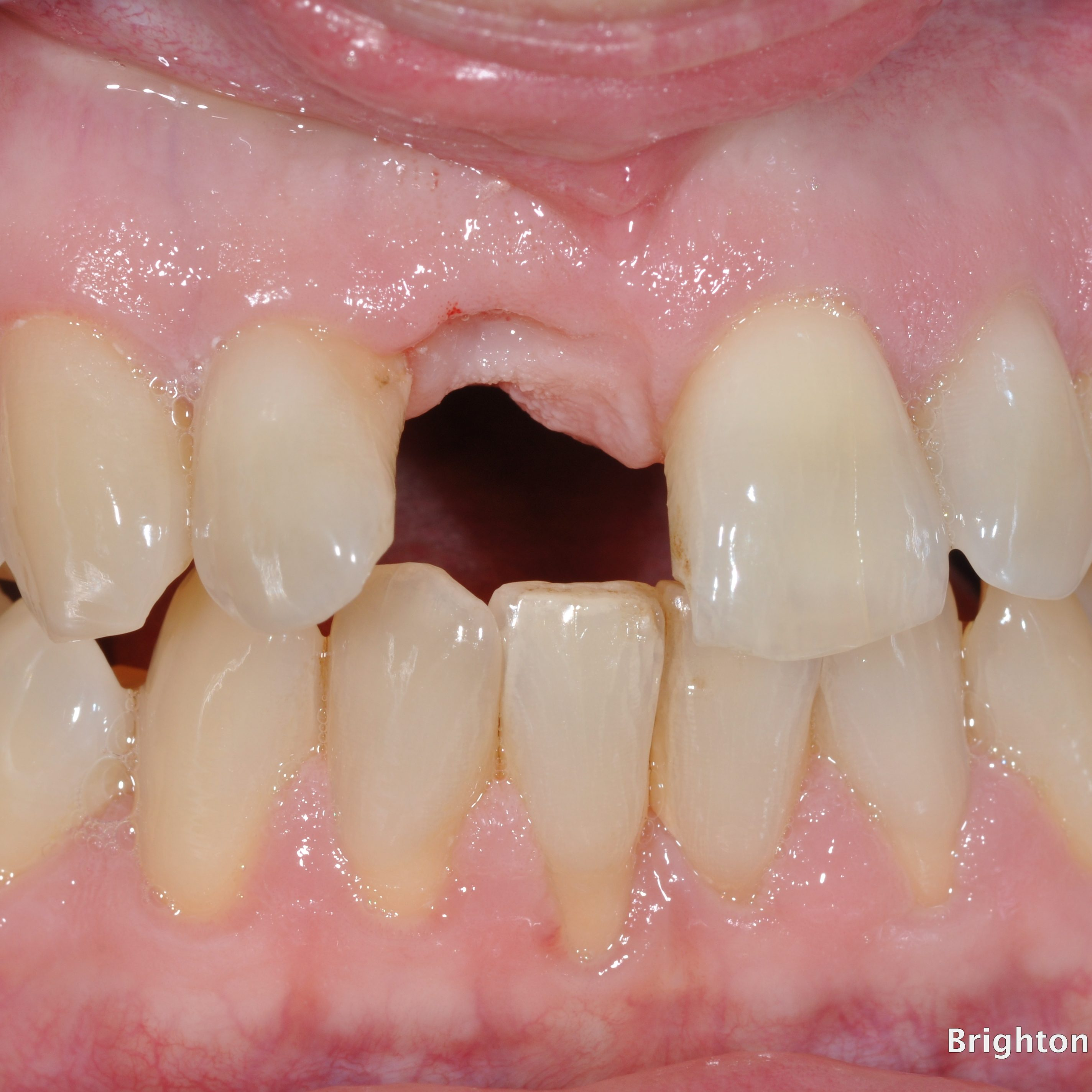 tooth has been extracted, gum and bone tissue loss evident